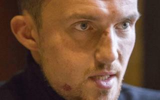 אולכסנדר למנוב, פעיל נגד שחיתות, לאחר שהותקף על ידי תוקפים שכירים לכאורה, ב-8 בנובמבר 2019 (צילום: פייסבוק)