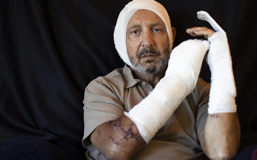 ריינייה ג'רייסטי, 63, איש עסקים, שנפצע בביתו במהלך הפיצוץ בנמל ביירות, אוגוסט 2020 (צילום: AP Photo/Hassan Ammar)
