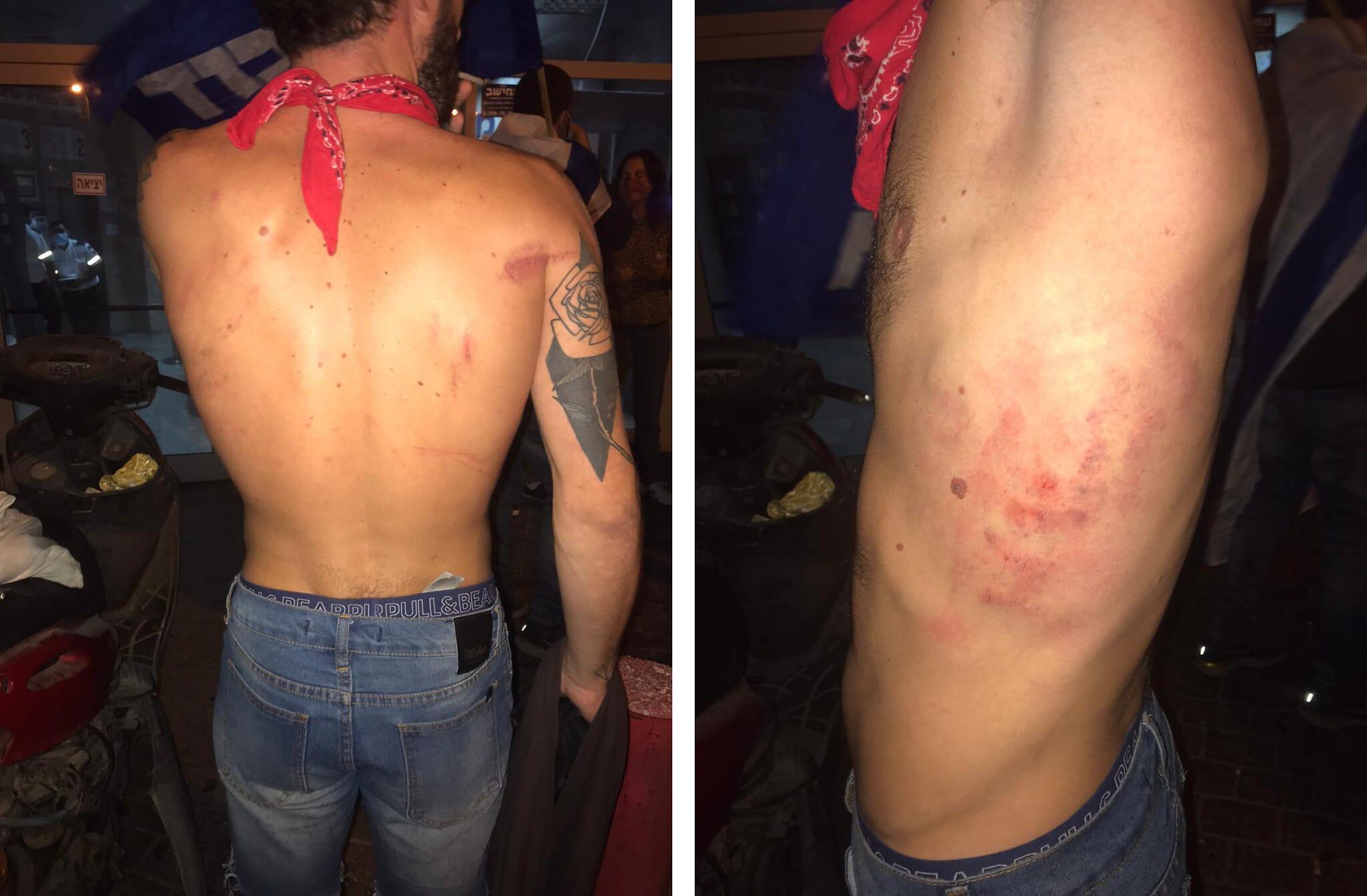 החבלות על גופו של סתיו שומר אחרי העימות עם המשטרה במהלך ההפגנה בבלפור ב-22 באוגוסט 2020 (צילום: באדיבות סתיו שומר)